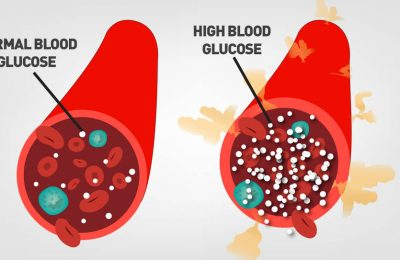 What Should The Blood Glucose Reading Be