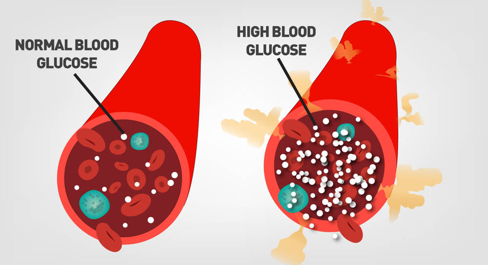 What Should The Blood Glucose Reading Be – Noah's March