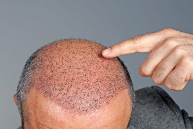 Hair-Micropigmentation-Surgery